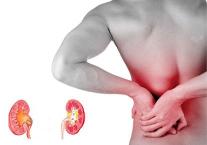 Kamen u bubregu - simptomi, izbacivanje i prirodno lečenje