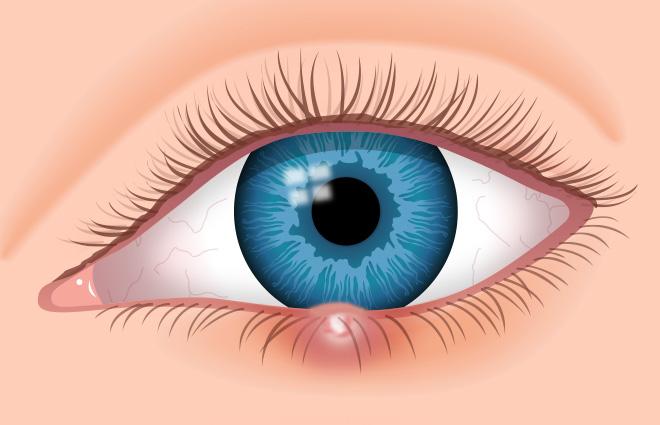 cmicak na oku - simptomi, koliko traje i kako se leci