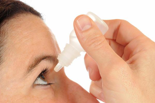 Konjuktivitis - simptomi i prirodno lecenje