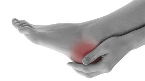 Bolovi u peti - uzroci, simptomi i lečenje