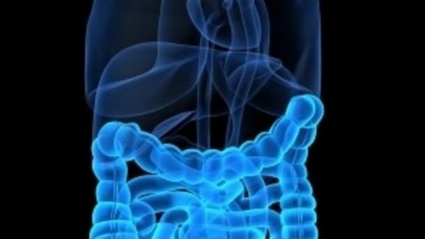 Upala debelog creva - simptomi i lečenje