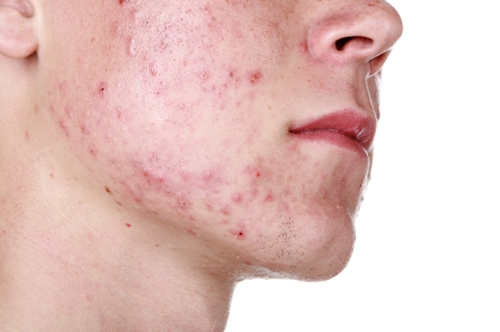 Kako ukloniti crvenilo na licu i obrazima - rozacea lečenje