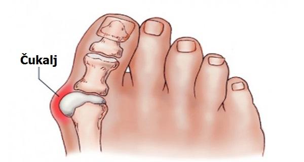 cukljevi na nogama – Uzroci, simptomi i lečenje