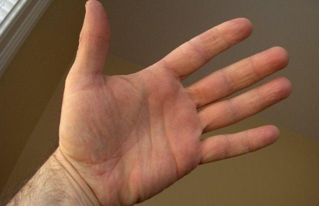 Ekcem na rukama – simptomi i lečenje